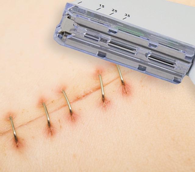 Skin Staplers