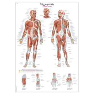 """Wall Chart """"Physiotherapy: Triggerpoints"""""""