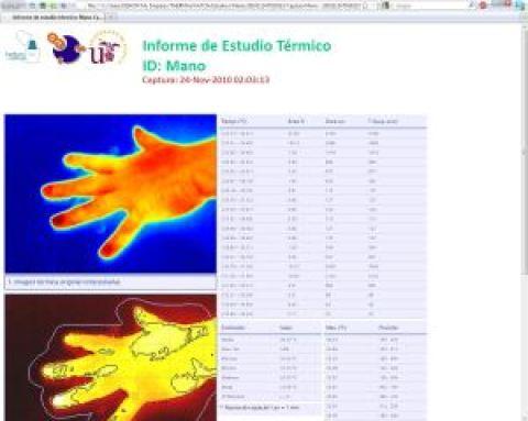 Thermal report