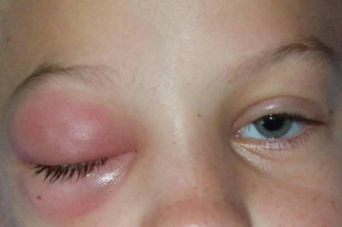 Obat Mata Merah Dan Bengkak Di Apotik
