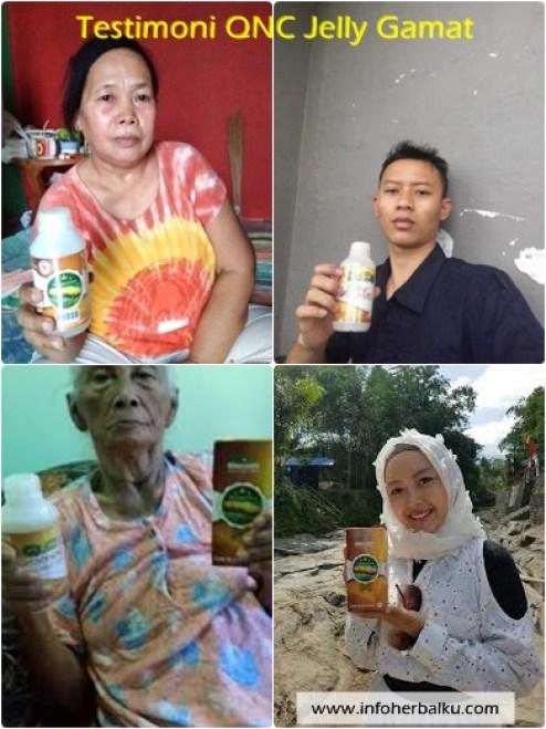 Obat Herbal Penyakit Fatty Liver