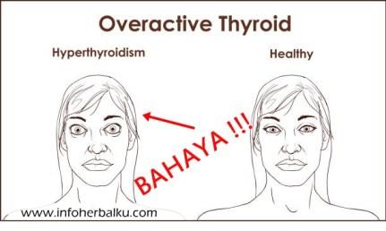 Obat Penyakit Hipertiroid Dengan Herbal Alami