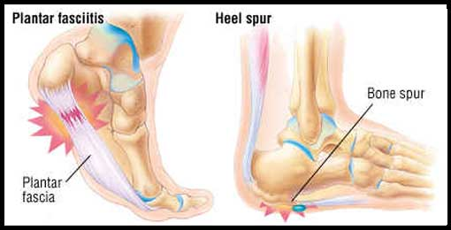Causes Heel Spurs and Plantar Fasciitis