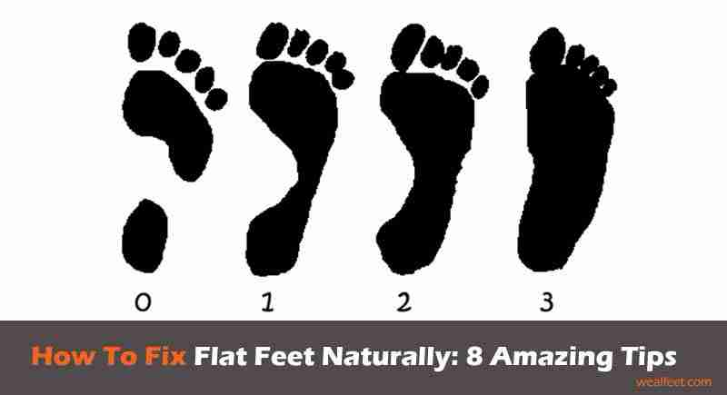 How to Fix Flat Feet Naturally