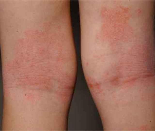 Atopik Dermatitis Salava A Openi