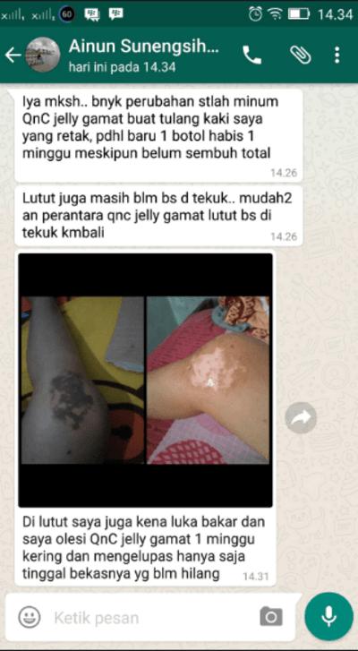 Nama Obat Salep Penyakit Kulit Psoriasis Di Apotik