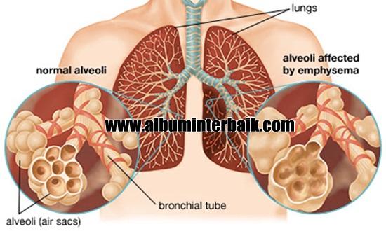 Perbedaan Infeksi Paru Paru Dengan TBC