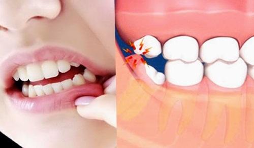 5 Obat Infeksi Gusi Setelah Cabut Gigi