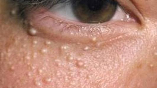 cara menghilangkan benjolan lemak di wajah