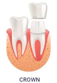 DentalCrown-e1589609727931