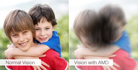 Vision with AMD