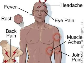 denguefeversymptoms