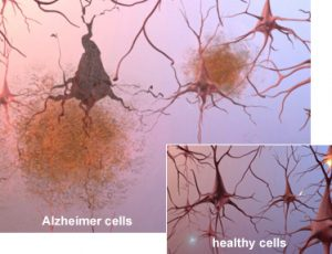 Researchers discovered new blood test early detection Alzheimer's disease