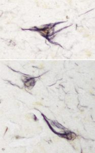Degenerating neurones in an Alzheimer's disease brain section labelled with an antibody developed against tyrosine phosphorylated tau.