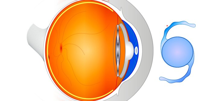 hydrogels cataract surgery