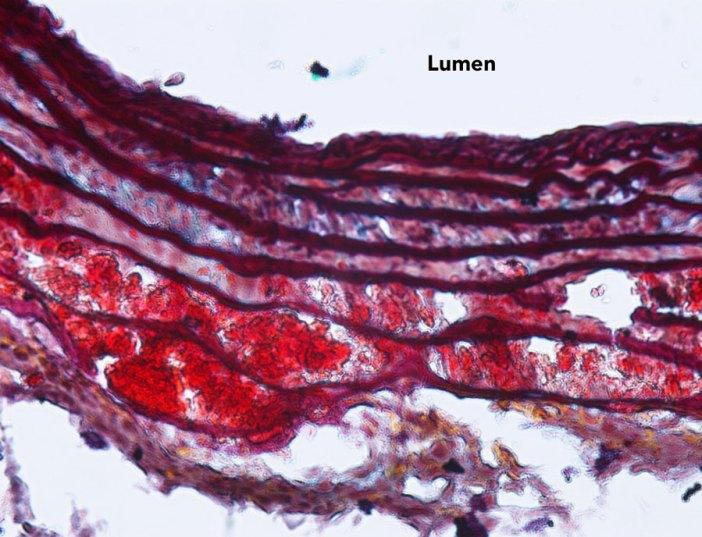 Angiotensin II infusion
