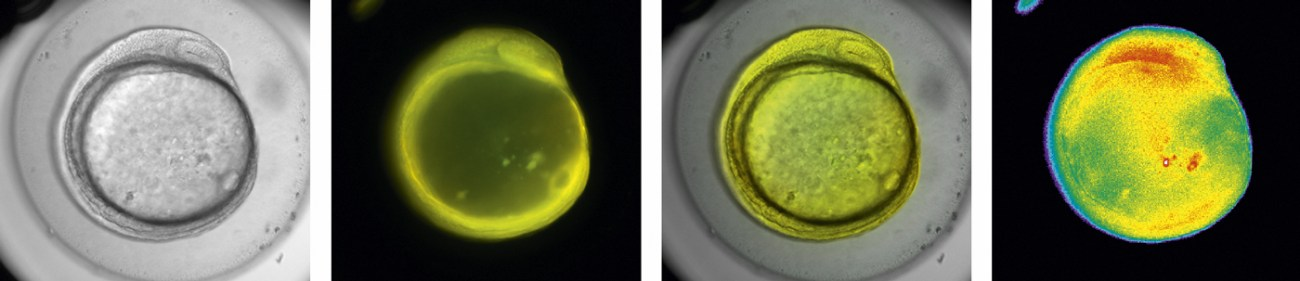 Calcium imaging in a zebrafish embryo