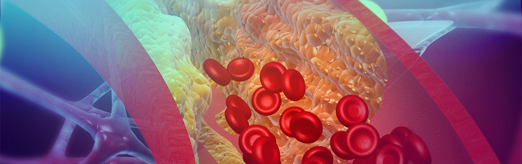 Inflammation inside arteries, a sure sign of developing atherosclerosis.