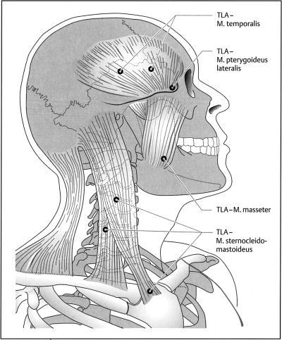from: Ernst A, Meyer-Holz J, Weller E. Manuelle Medizin an der