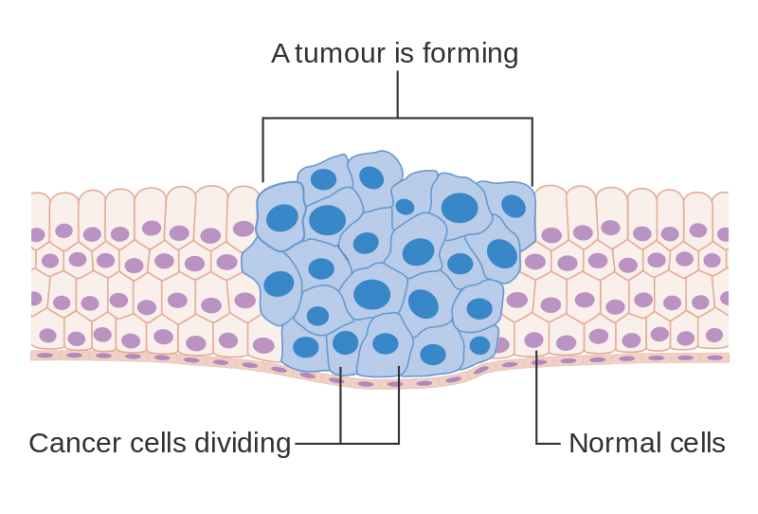 Diagram_showing_how_cancer_cells_keep_on_reproducing_to_form_a_tumour_CRUK_127-758x514