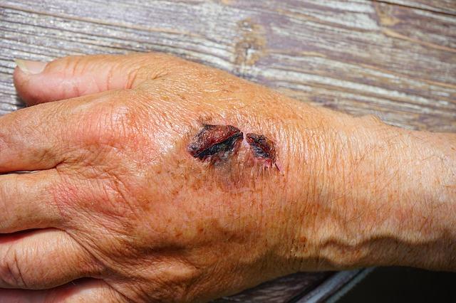 cara mengobati luka bekas koreng hitam