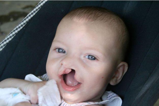 """Diego est né avec une fente labio-palatine unilatérale, une anomalie qui touche un enfant sur 800, plus connue sous le nom de """"bec-de-lièvre""""."""