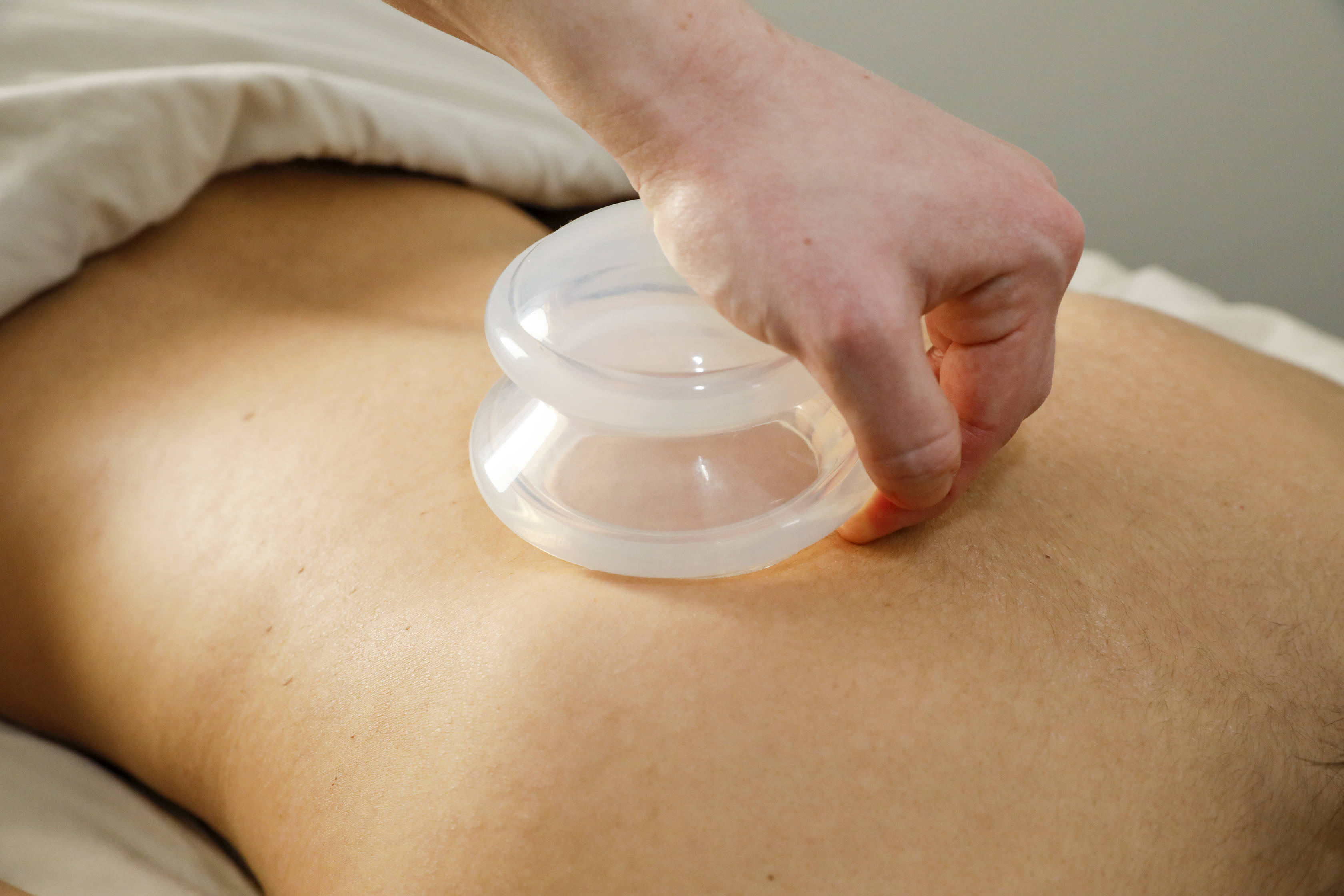 massage therapist applying silicone suction cup