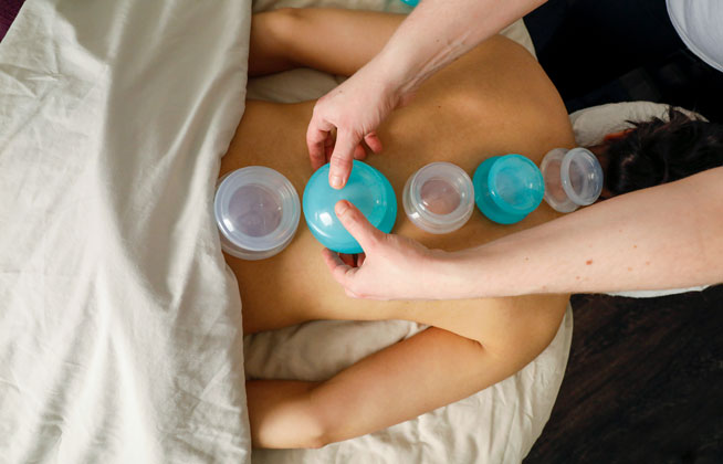 photo of woman receiving cupping massage