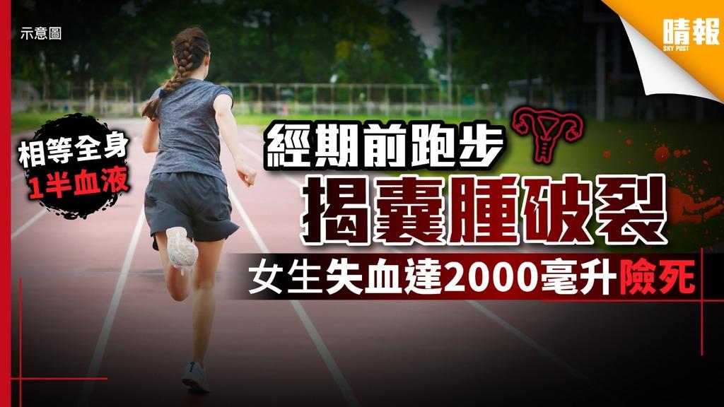 經期前跑步揭囊腫破裂 女生失血達2000毫升險死 - 晴報 - 健康 - 女性疾病 - D190703