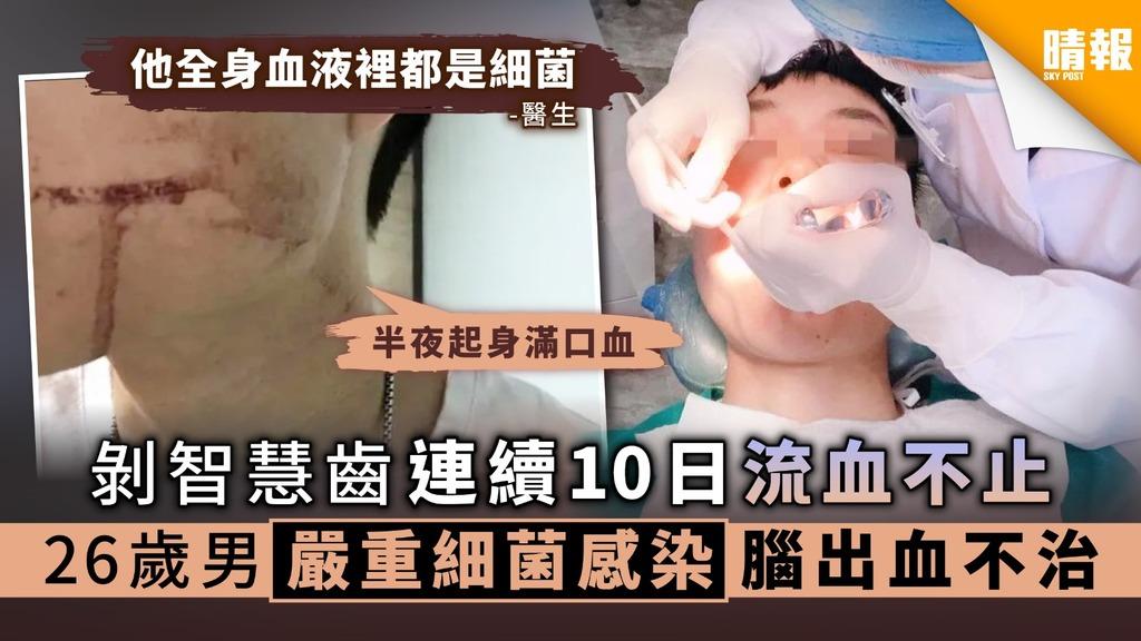 【拔智慧齒】剝智慧齒連續10日流血不止 26歲男嚴重細菌感染腦出血不治 - 晴報 - 健康 - 其他疾病 - D200707