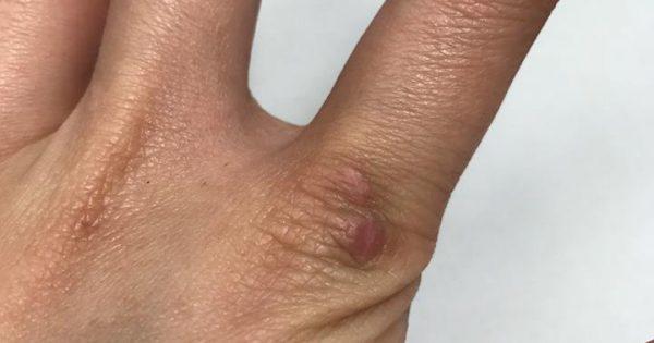 去傷疤@ISDIN肌膚再生疤痕修復霜 - U Blog