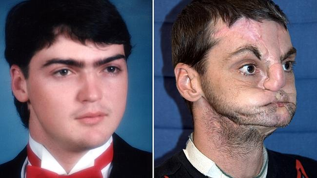 Before and before ... Norris before the accident and prior to his transplant operation. P