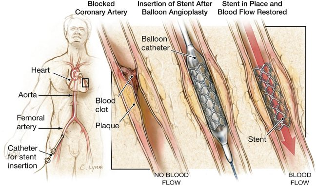 Coronary artery angioplasty and stenting