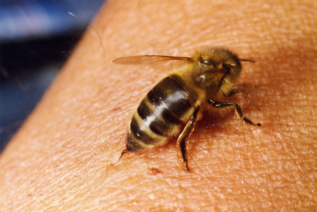Apitherapy and bee venom acupuncture