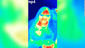 Thermography and thermal images