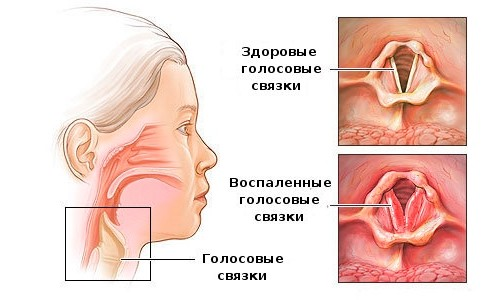Image Result For Cough During Pregnancy