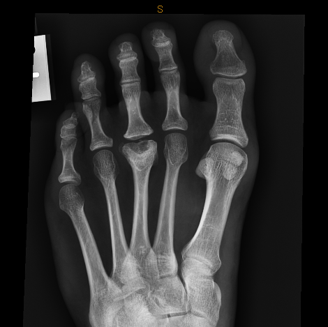 A Focus On Freibergs Disease A Cause Of Forefoot Pain Resonance