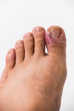 Close up of ingrown toenail