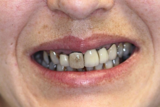 before-upper-arch-crowns