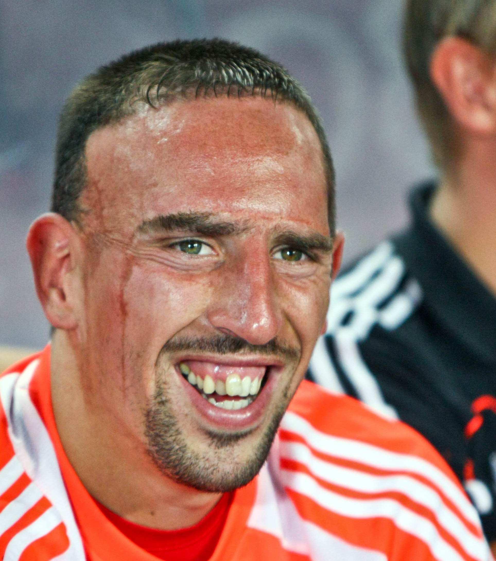 Franck Ribery Zähne
