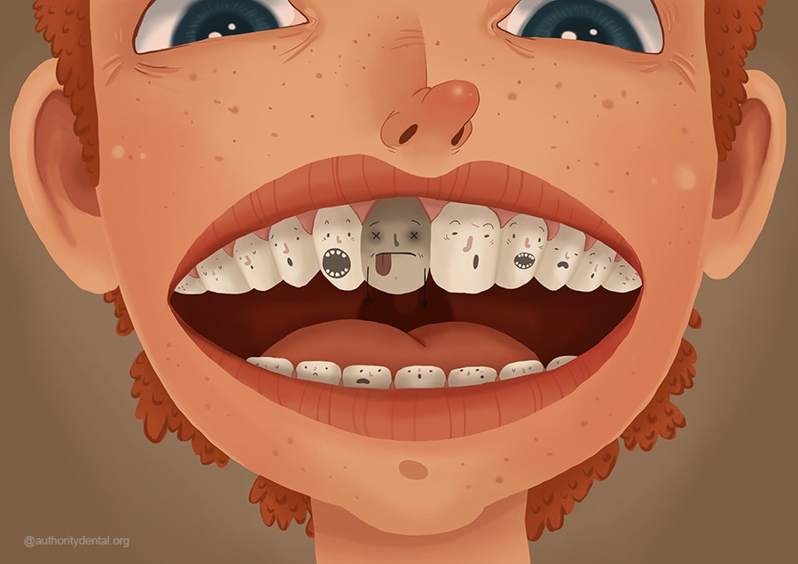 Nonvital Tooth Bleaching: A Review of the Literature and Clinical Procedures by Plotino