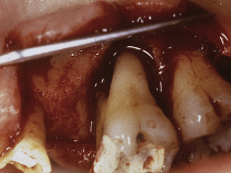 Treatment Strategy for Guided Tissue Regeneration in Combined Endodontic-Periodontal Lesions: Case Report and Review by Oh