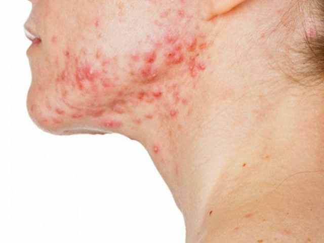 Image result for Autoimmune Diseases