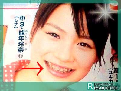 のん(能年玲奈) 中学3年生 歯列矯正