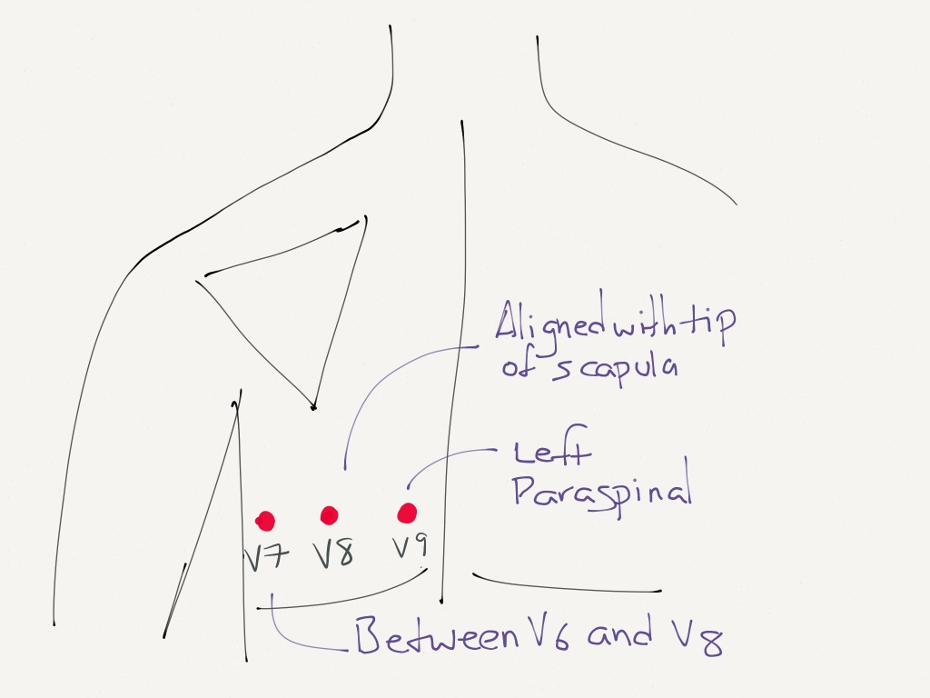 Lead Placement For Posterior Ecg Resus Review