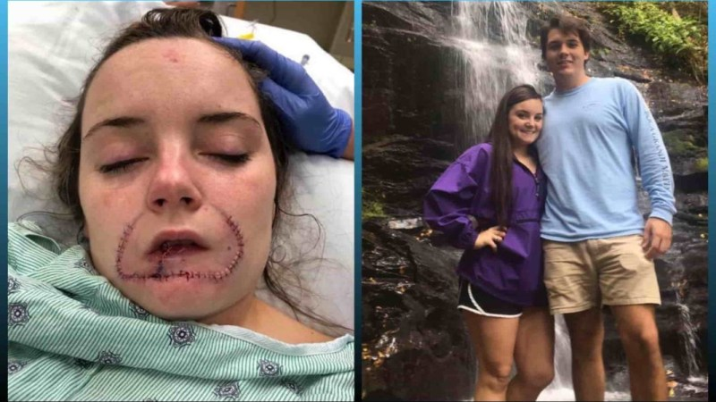 Ex-Boyfriend Bites Off Girl's Lip Because He Wanted To 'Leave A Mark' For Her Next Boyfriend