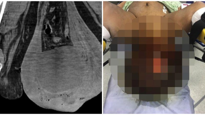 Ouch: Man's Scrotum Swells Greater Than Football, Starts Decaying and Hangs Down His Knees