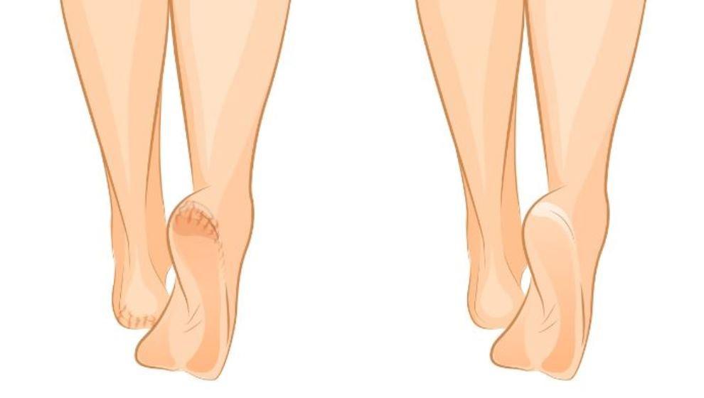 Tratează Picioarele Crăpate și Uscate Cu Bicarbonat De Sodiu