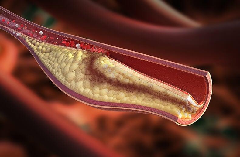 Simptome de Colesterol Ridicat în sânge