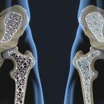 Tratament Osteoporoza